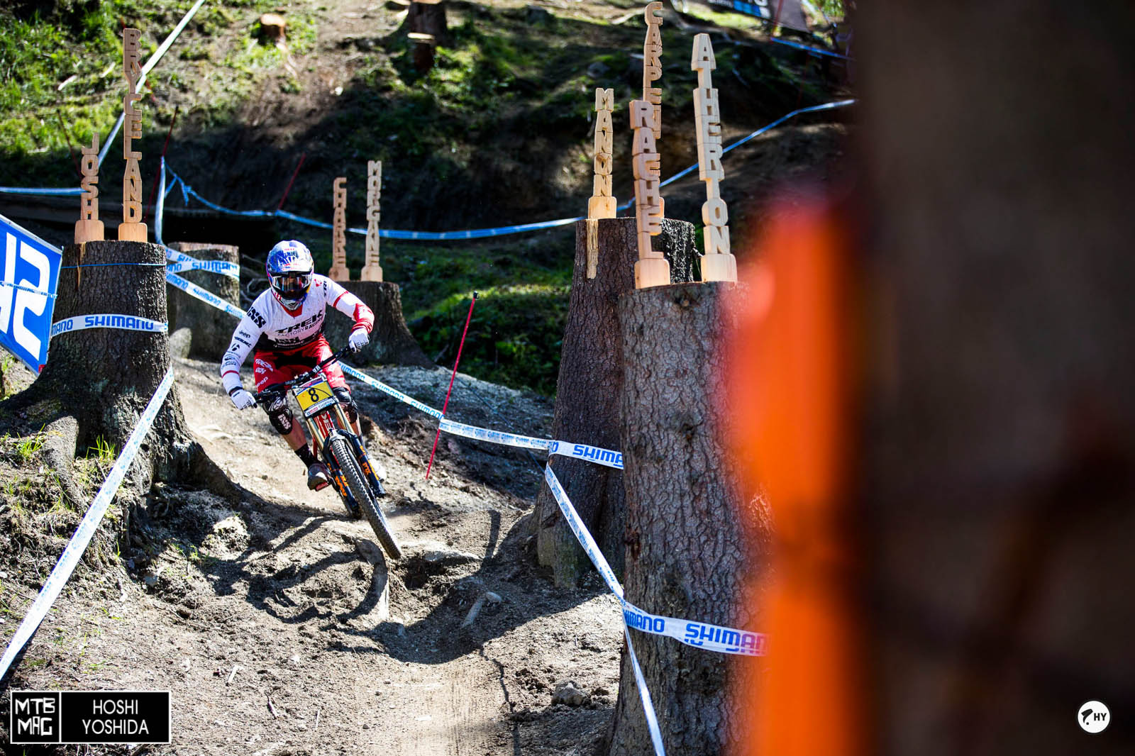 Gee Atherton looks full motivated after his crash in Fort William last weekend